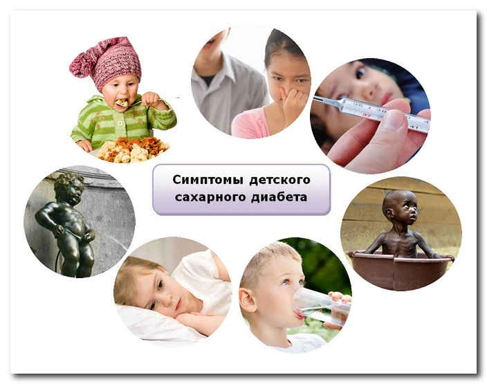 Симптомы детского сахарного диабета