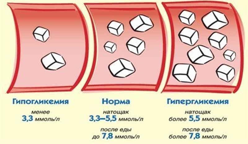 Преддиабет: симптомы и норма сахара в крови