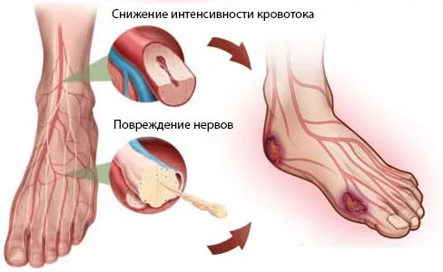 Лечение диабетической ангиопатии нижних конечностей препараты