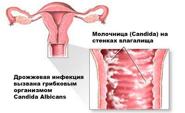 Зуд и жжение в интимной зоне у женщин при сахарном диабете: лечение