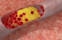 Диабетическая ангиопатия сосудов нижних конечностей