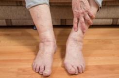 Болят ноги при диабете