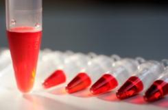 Норма сахара (глюкозы) в крови у мужчин