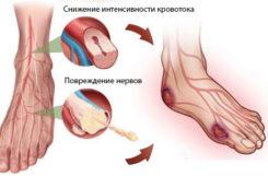 Стопа Шарко при сахарном диабете