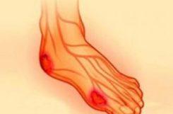 Лечение народными средствами нейропатии нижних конечностей