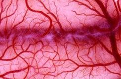 Ангиопатия нижних конечностей при сахарном диабете