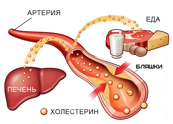 Холестерин у мужчин: норма в крови, таблица возрастов