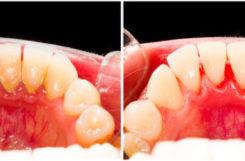 Гигиена полости рта при диабете. Лечение в клинике и правила домашнего ухода