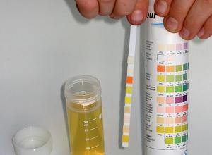 Как проводится определение сахара в моче Глюкотестом