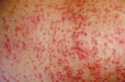 Высыпания при сахарном диабете: фото и симптомы крапивницы и диабетической пузырчатки на коже