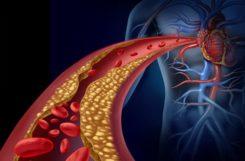 Атеросклероз и внутренние болезни: развитие заболевания и поражение организма