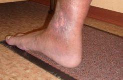 Трофическая язва на ноге при сахарном диабете: лечение болячки инсулином, фото нижних конечностей