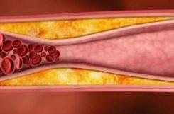 Атеросклероз сосудов головного мозга: лечение народными средствами в домашних условиях