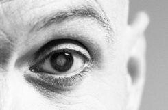 Диабетическая катаракта: причины, симптомы, лечение