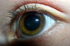 Лечение глаукомы при сахарном диабете: проблемы со зрением у диабетиков