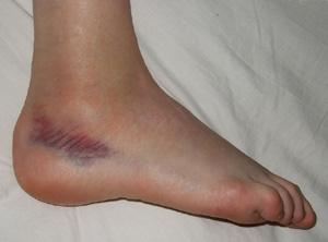 Крем для ног для диабетиков эффективные мази