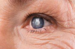 Диабетическая катаракта: причины, симптомы, медикаментозное и хирургическое лечение
