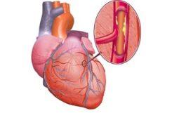 Ишемическая болезнь сердца и сахарный диабет. Почему эти болезни идут рядом?