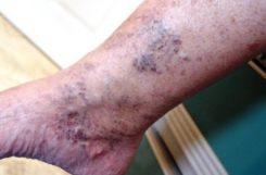 Диабетическая ангиопатия: симптомы, диагностика, лечение