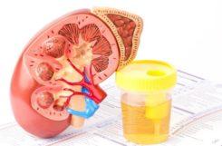 Полиурия при сахарном диабете: причины, симптомы, лечение, профилактика