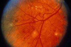 Что такое диабетическая ретинопатия и как ее лечить?