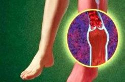 Что такое диабетическая ангиопатия и чем она опасна