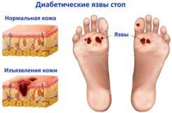 Диабетическая стопа: формы, симптомы, лечение, профилактика