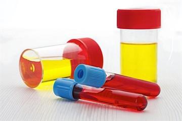 Кетоацидоз: лечение при сахарном диабете в домашних условиях и неотложная помощь
