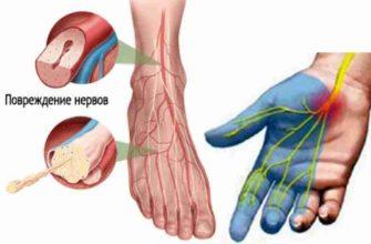 Диабетическая полинейропатия: код по МКБ-10, симптомы, причины возникновения и лечение
