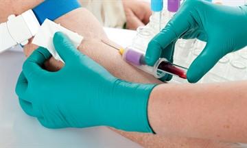 Чем опасен повышенный сахар в крови: чем грозит высокий показатель, последствия