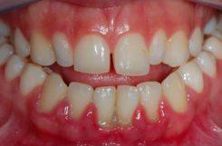Проявление сахарного диабета в полости рта: стоматит и глоссит у диабетиков