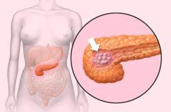 Диета при кисте поджелудочной железы: какие продукты разрешены, примерное меню