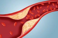 Холестерин 18 в организме: что это означает и что делать при уровне от 18.1 до 18.9?