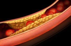 Холестерин 20 в организме: что это означает и как быть при таком показателе?